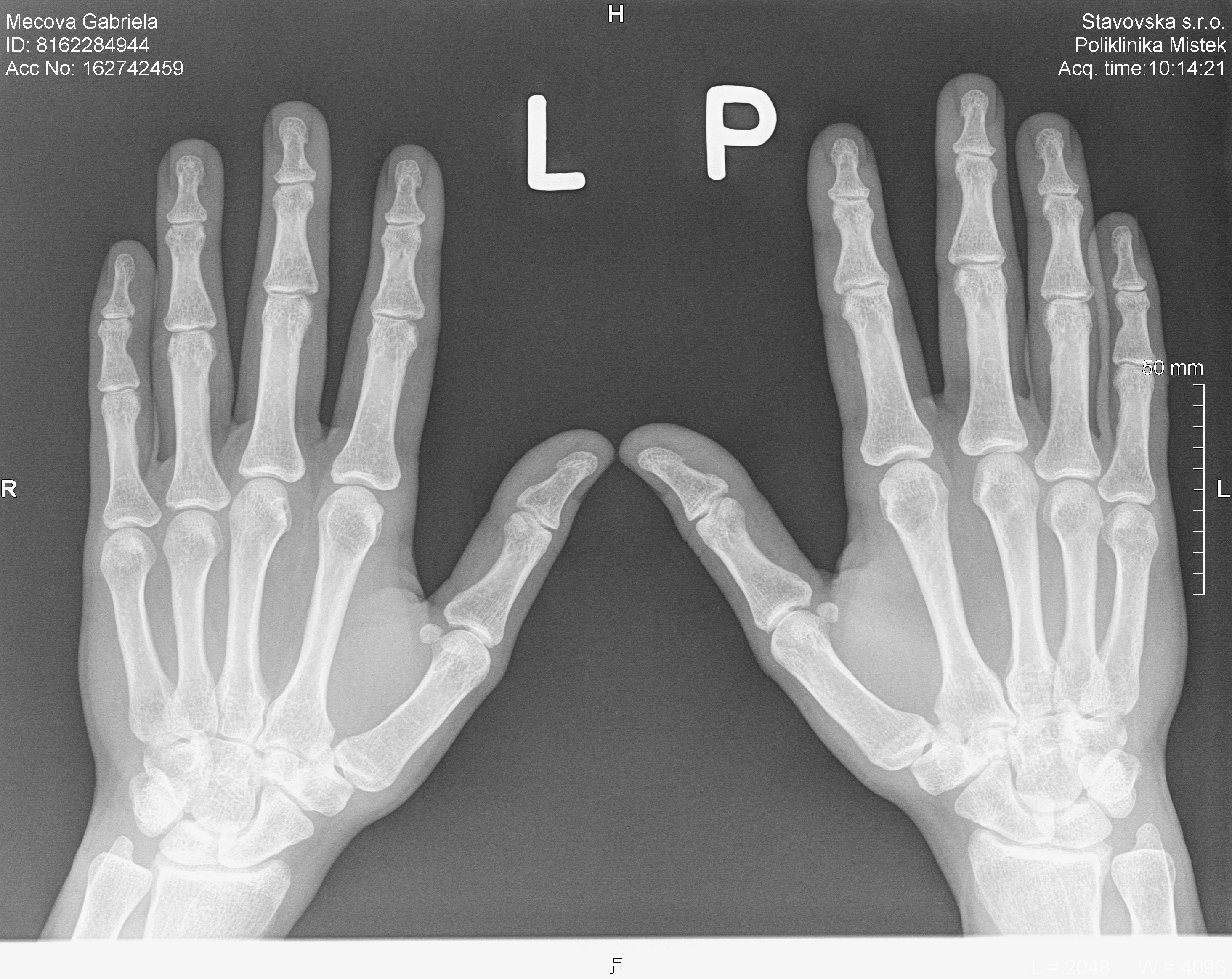 Bolest palce u ruky - diagnóza, příznaky, léčba