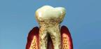 Parodontóza, skrytý strašák v ústech