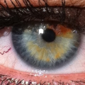 Pálení očí u seniora