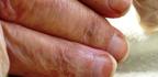 Vlasy, pleť a nehty při rakovině
