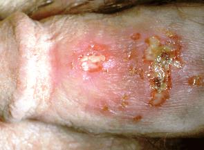 Opruzeniny genitálií alias genitální herpes