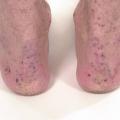 Dermatitida