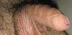 Testikulární hrudky abulky navarlatech