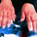 Brnění ruky aprstů