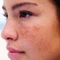 Rady na odstranění tmavých skvrn na tváři