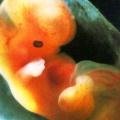 Vývoj plodu týden potýdnu
