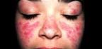 Příznaky nemoci lupus