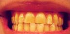 Žluté zuby