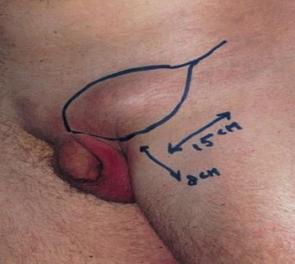Amputace penisu