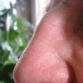 Příčiny studeného nosu