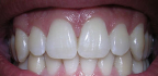 Drolení zubů