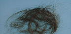 Svědění hlavy apadání vlasů