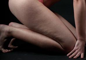 Celulitida – masáž nadoma