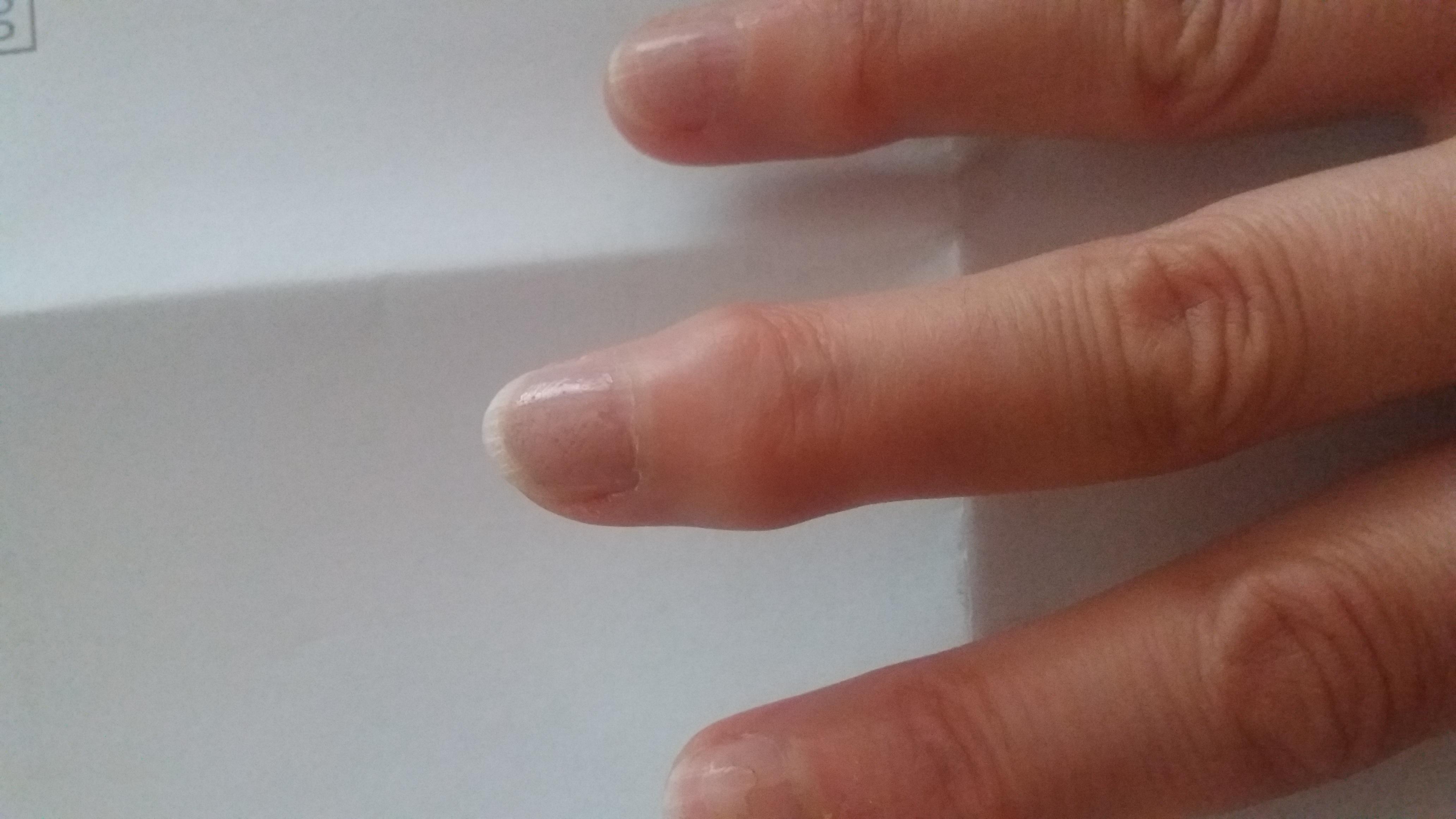 artroza v ruce)