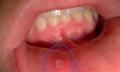 Afty v ústní dutině