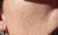 Jak dostat pigmentové skvrny z obličeje