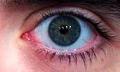 Život s vadami zraku