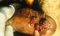 Kondylomata aneb genitální bradavičky