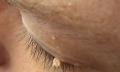 Bradavice kolem očí