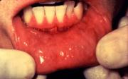 Rakovina dutiny ústní