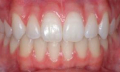 Rakovina dásně