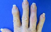 Bulka nakloubu prstu