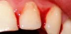Domácí léčba zánětu dásně