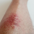 Alergická vyrážka nanohou