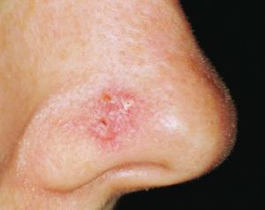 Rakovina kůže nanose