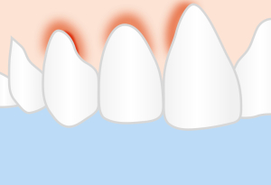 Babské rady nazánět dásní