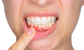 Nateklý zub