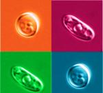 Domácí léčba vaginální kvasinkové infekce