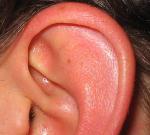 Co znamená pálení uší nebo pálení v uchu?