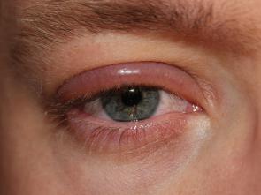 Vysušená kůže na očním víčku a svědění