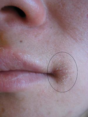 Časté praskání ústních koutků