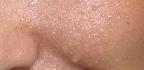 Jak na červenání tváří a praskání žilek