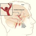 Výduť na mozku