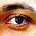 Chronické příznaky syndromu suchého oka