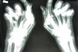 Artróza