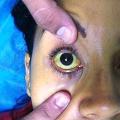 Přehled žloutenek (hepatitid)