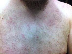 Červené skvrny na hrudi