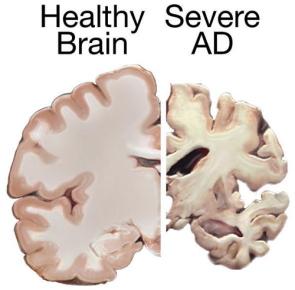 Alzheimerova choroba a další formy demence