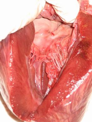 Vrozené srdeční vady