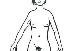 Neplodnost u žen