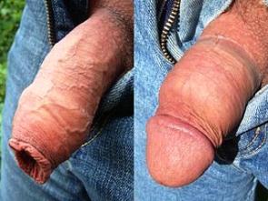 Obřízka