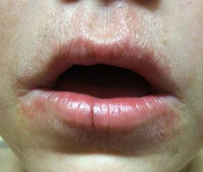 Periorální dermatitida