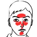 Červené žilky na tváři