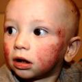 Vyrážka na obličeji u dětí