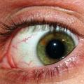 Červené flíčky a pupínky pod okem