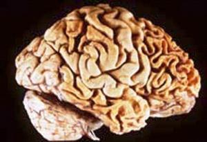 Druhy demencí